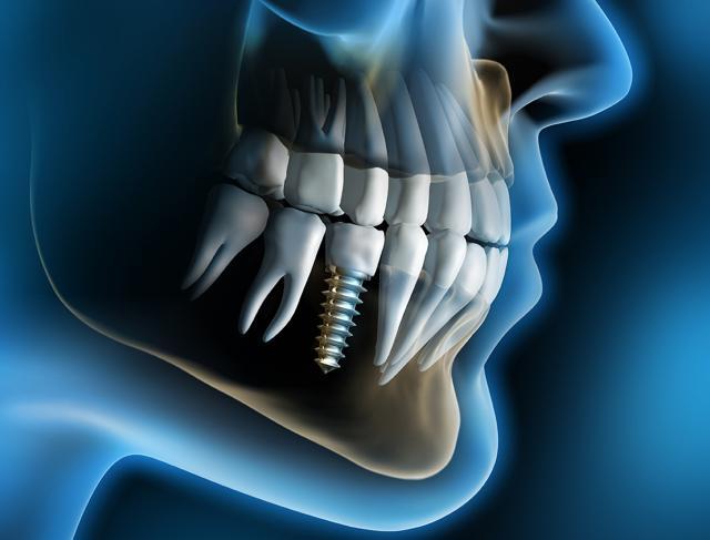 οδοντικά εμφυτεύματα Λαρισα