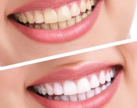 Λεύκανση λαρισα,οδοντίατροι λαρισα
