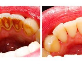 σοδοβολη, airflow,καθαρισμος,Λαρισα,οδοντιατροι