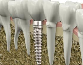 οδοντικά εμφυτεύματα στην Λάρισα,εμφυτεύματα,Οδοντίατροι,Λάρισα.