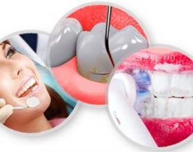πρόληψη,γερά δόντια,καθαρισμός,δοντιών,βούρτσισμα,οδοντίατροι,οδοντιατρείο,οδοντίατρος,οδοντιατρεία,Λάρισα.