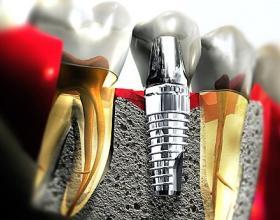 οδοντικά εμφυτεύματα,Λάρισα,εμφυτευματολογοι