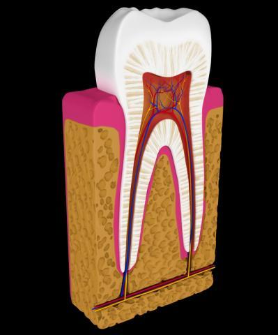 Ενδοδοντική Θεραπεία,Απονευρωση δοντιου